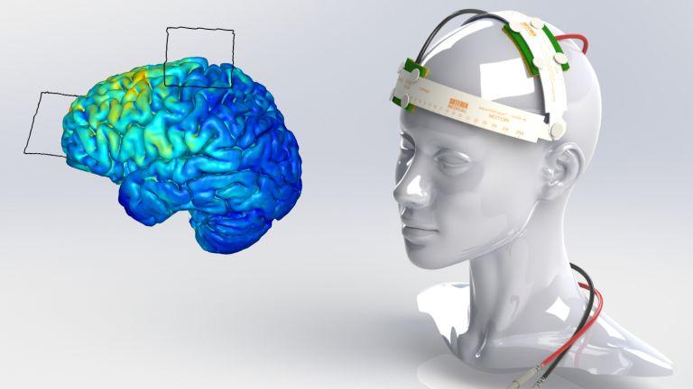 Megadott helyre rögzített elektródák az agy konkrét terülteit ingerlik