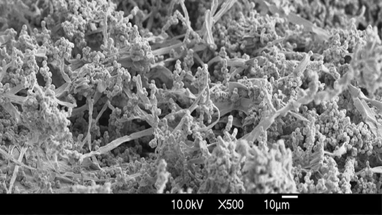 Ochratoxin A elektronmikroszkóp alatt