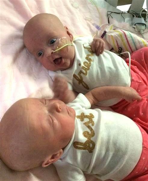 Megható történet: újra találkoztak az ikerbabák, miután súlyos betegségből épültek fel