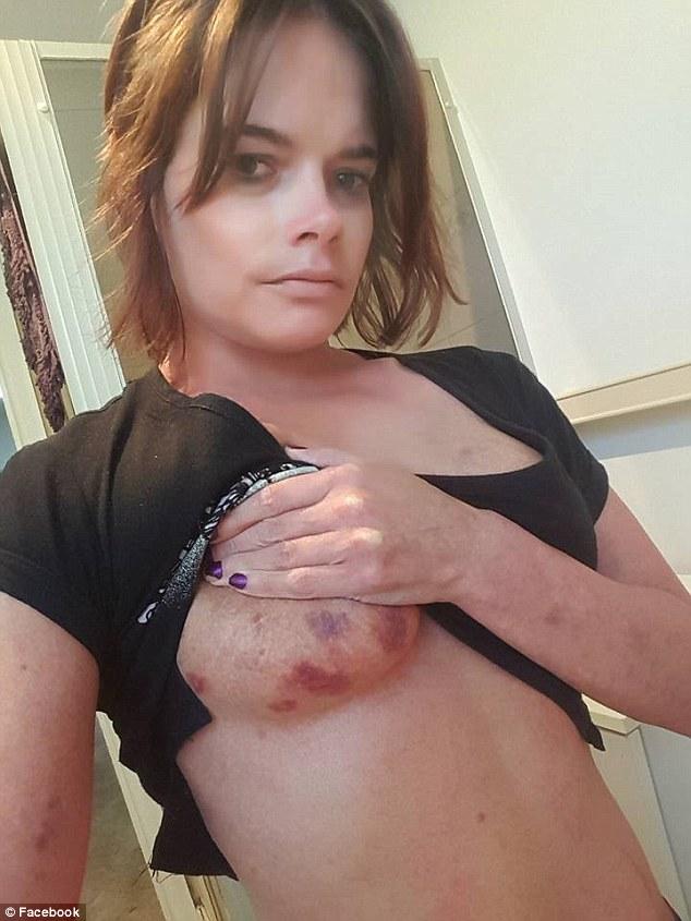 Facebookon fedte fel megerőszakolt testét