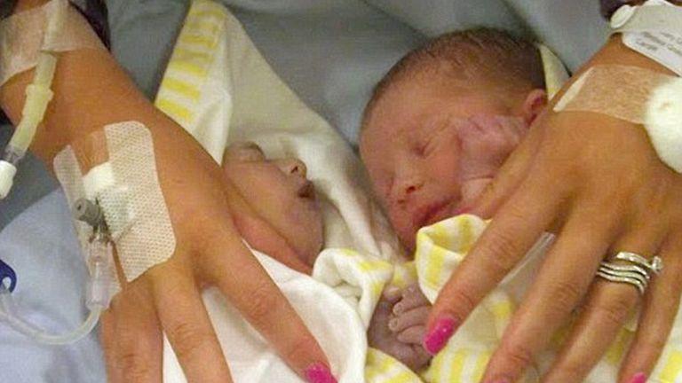 Teddy (balra) gyakorlatilag agy nélkül született
