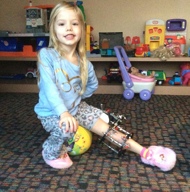 Több, mint 300 alkalommal törte el lánya lábát, hogy megmentse az amputációtól