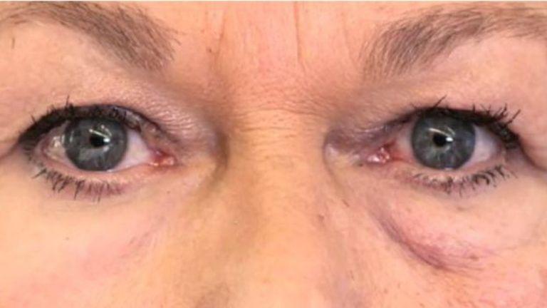 Jól látszik, hogy a jobb szem alatt sokkal kevésbé táskás és ráncos a bőr