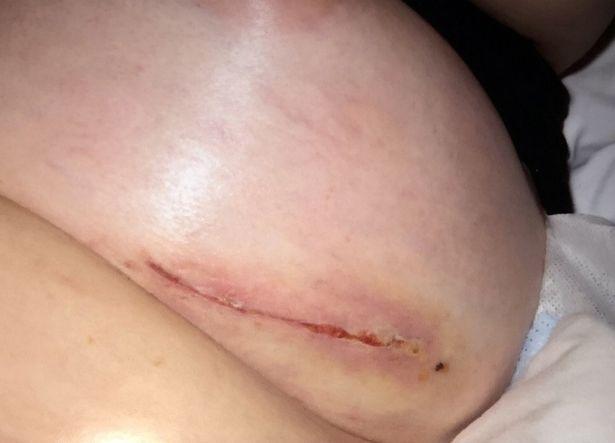 Az elbaltázott mellműtét után felrobbant a fiatal nő melle