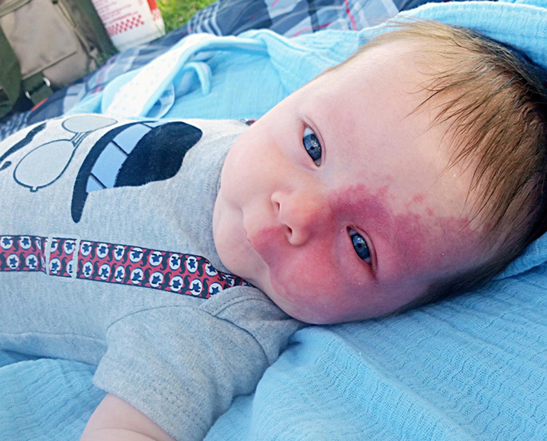 Nem engedi eltávolítani kisfia arcáról a hatalmas születési foltot az anyuka - fotók