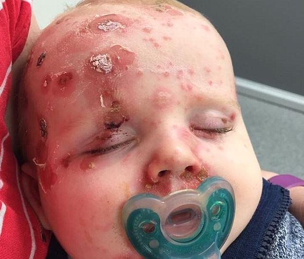 Bárányhimlős lett 11 hónapos kisfia – ijesztő képet tett róla közzé