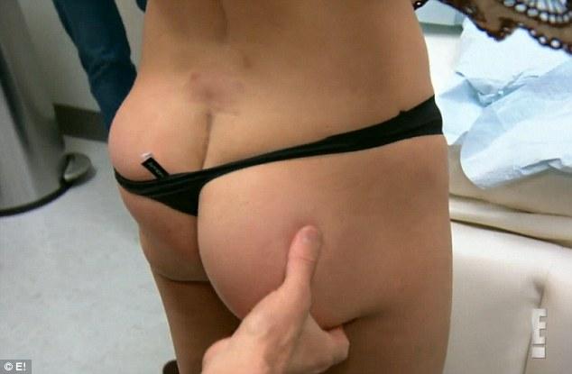 Még az orvosok is kiakadtak a nő elrontott fenékimplantátumán