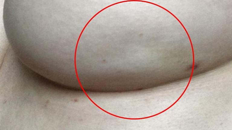 A mellrák egy ritka tünetére figyelmeztet a kétgyermekes anyuka