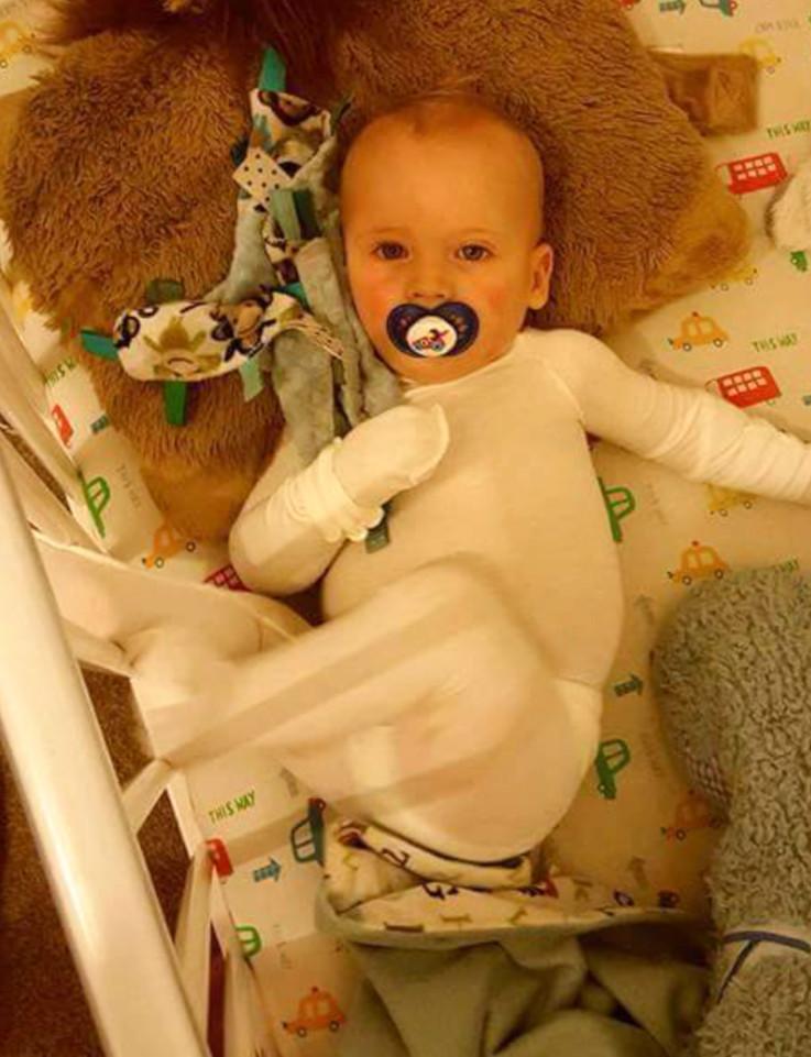 Súlyos bőrbetegsége miatt úgy néz ki a kisbaba, mintha állandóan vernék
