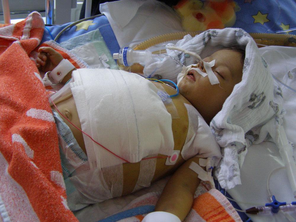 A 10 éves Tímea májátültetés után