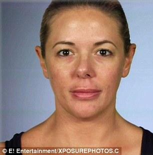 21 évig szenvedett az elrontott orrplasztikája miatt