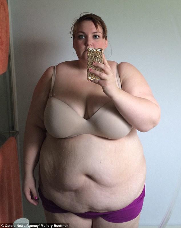 Először húzott bikinit a tanárnő, miután 95 kilót fogyott