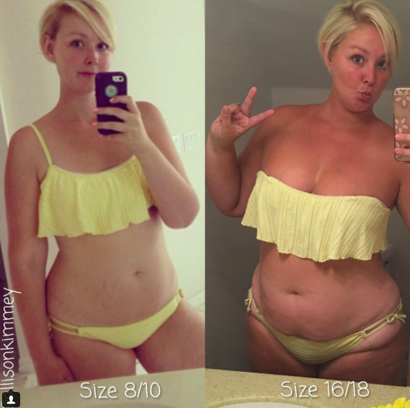 A soványabb nem mindig jobb - ezt bizonyítja ez a nő fotóival