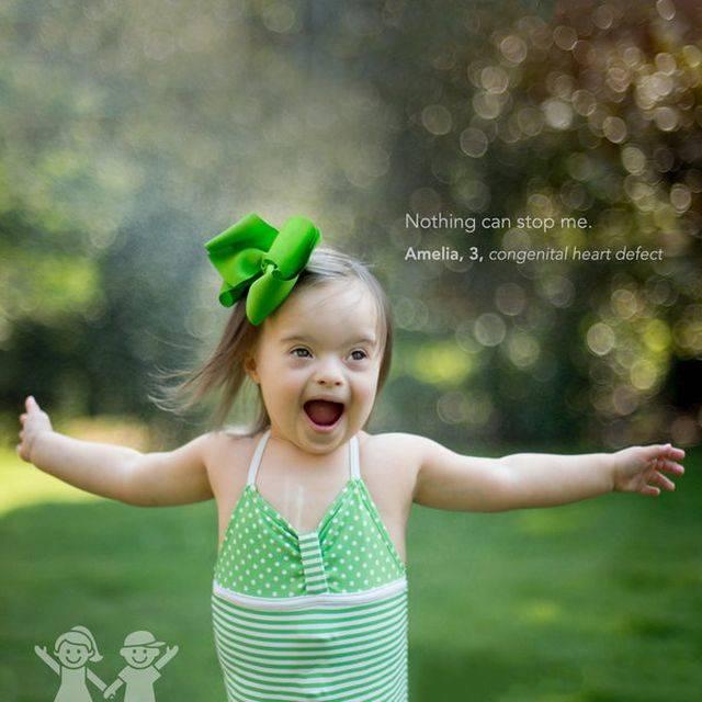 A túlélés hegei - Gyerekek mutatják büszkén a sebhelyeiket egy a fotósorozatban