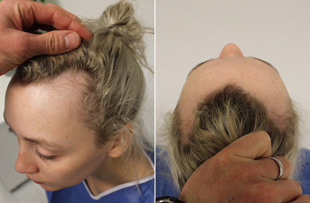 Kontyban hordta a haját, csúnya következménye lett - fotók