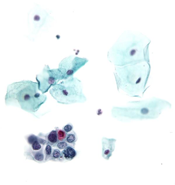 A citológiai vizsgálat során mikroszkóppal keresik a betegségre utaló jeleket (Fotó: Wikipedia)