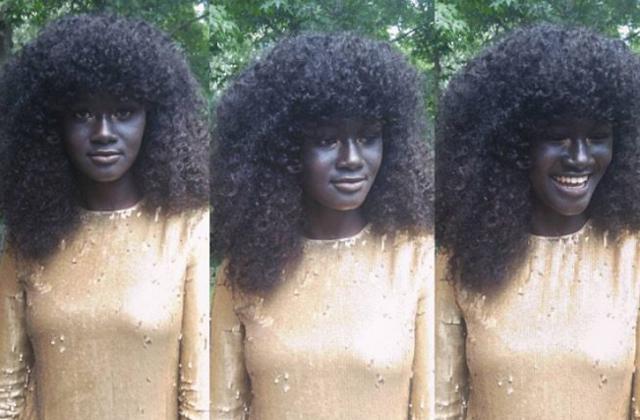 Olyan bőrszíne van ennek a nőnek, mint senki másnak a világon - fotók