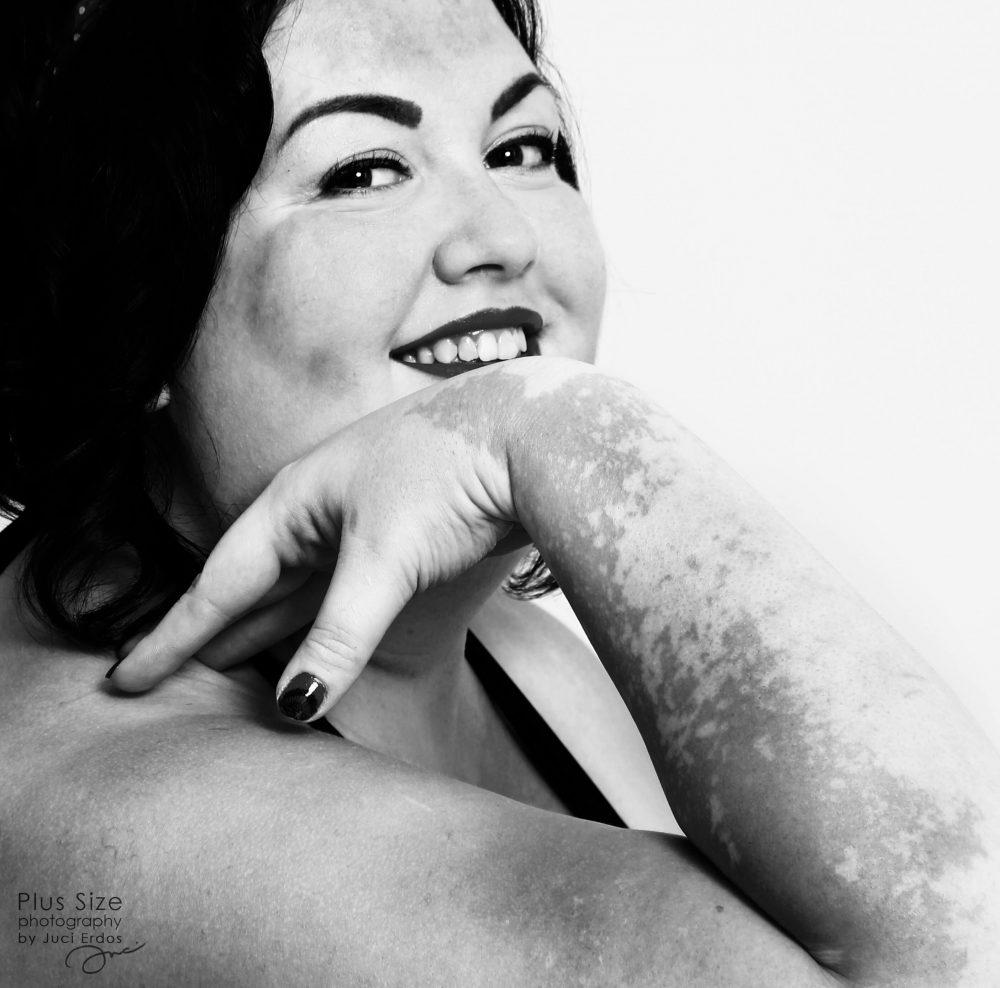 Gyönyörű fotók egy magyar vitiligós plus size nőről, akire öröm ránézni