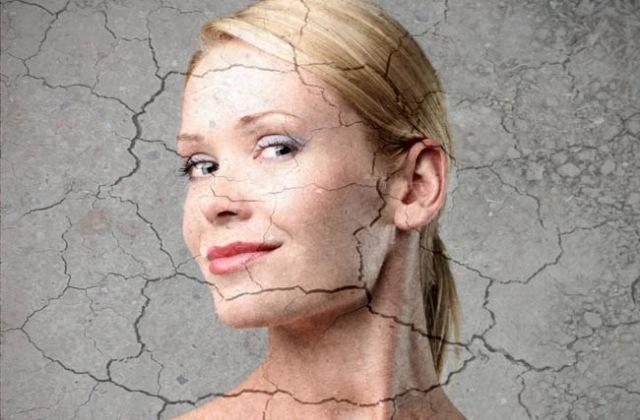 Ezek okozzák leggyakrabban a bőrszárazságot