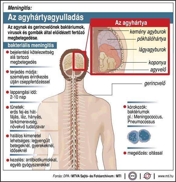 Sokba kerül az agyhártyagyulladás elleni oltóanyag