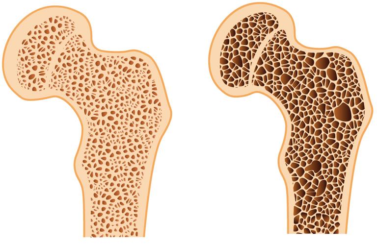 Balra az egészséges, jobbra a csontritkulás által megtámadott csont szerkezete (Kép: Tumblr)