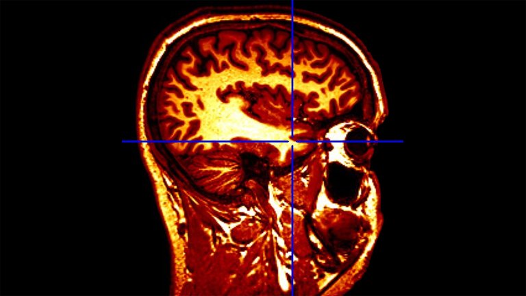 Az emberi agy működéséről még sok mindent nem tudunk (Fotó: Andersen Dávid)