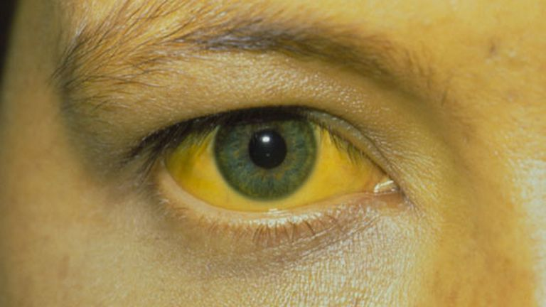 A szem sárgasága a tünetegyüttes egyik jele