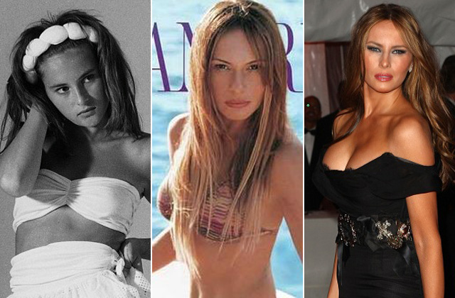 Így nézett ki Melania Trump a plasztikai műtétei előtt