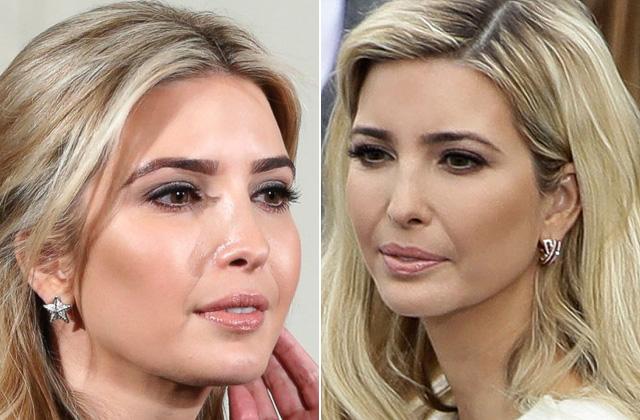 Így nézett ki Ivanka Trump a plasztikai műtétei előtt