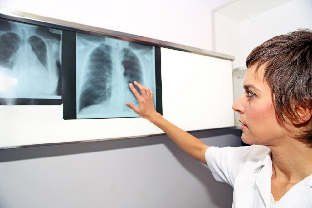 A pulmonalis hypertónia röntgenképe