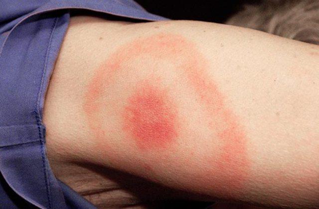 10+1 dolog, amit nem tudtál a Lyme kórról