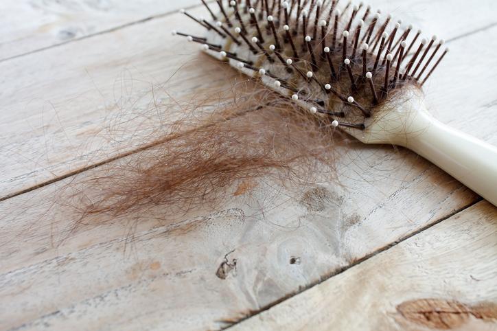 Komoly problémákat okoz a hajhullás