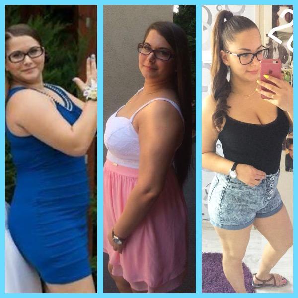 Fogyj le tudatosan: ismerjétek meg Annát, aki eddig 20 kilótól szabadul meg