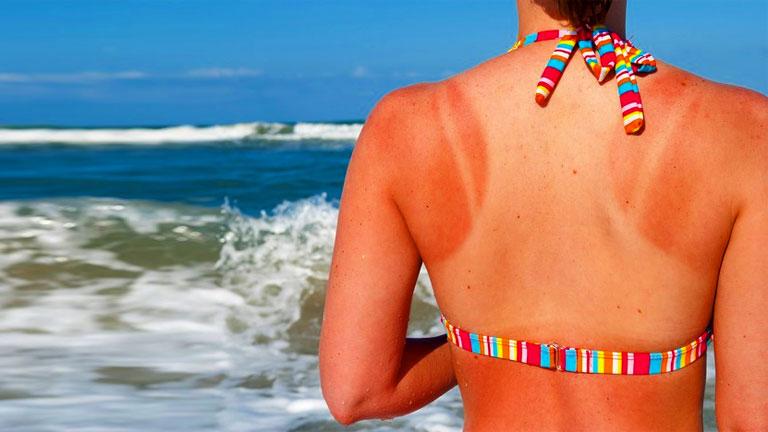 A nap káros sugarai a vízparton fokozottan romboló hatásúak lehetnek (Fotó: Tumblr)