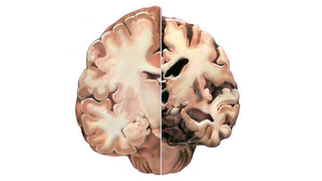 alzheimer kór agy demencia öregedés