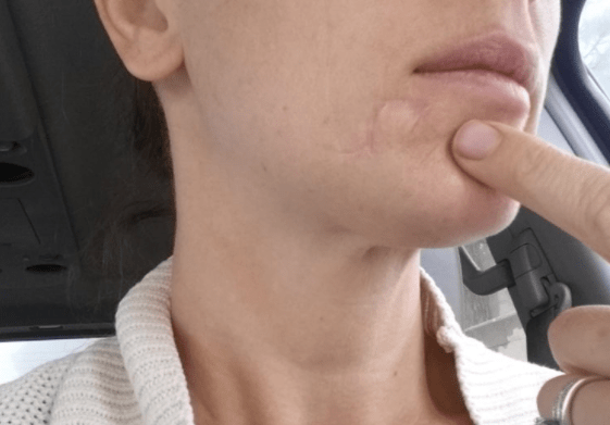 pattanásos bőrrák papilloma vírus hpv vph