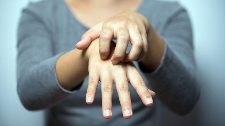 Az ekcéma tünetei hatékonyan enyhíthetők – tanácsok felnőtteknek