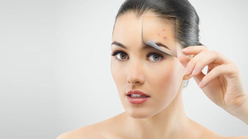 Bőrmegújítással kezelhető a problémás arcbőr 9fd70c2285