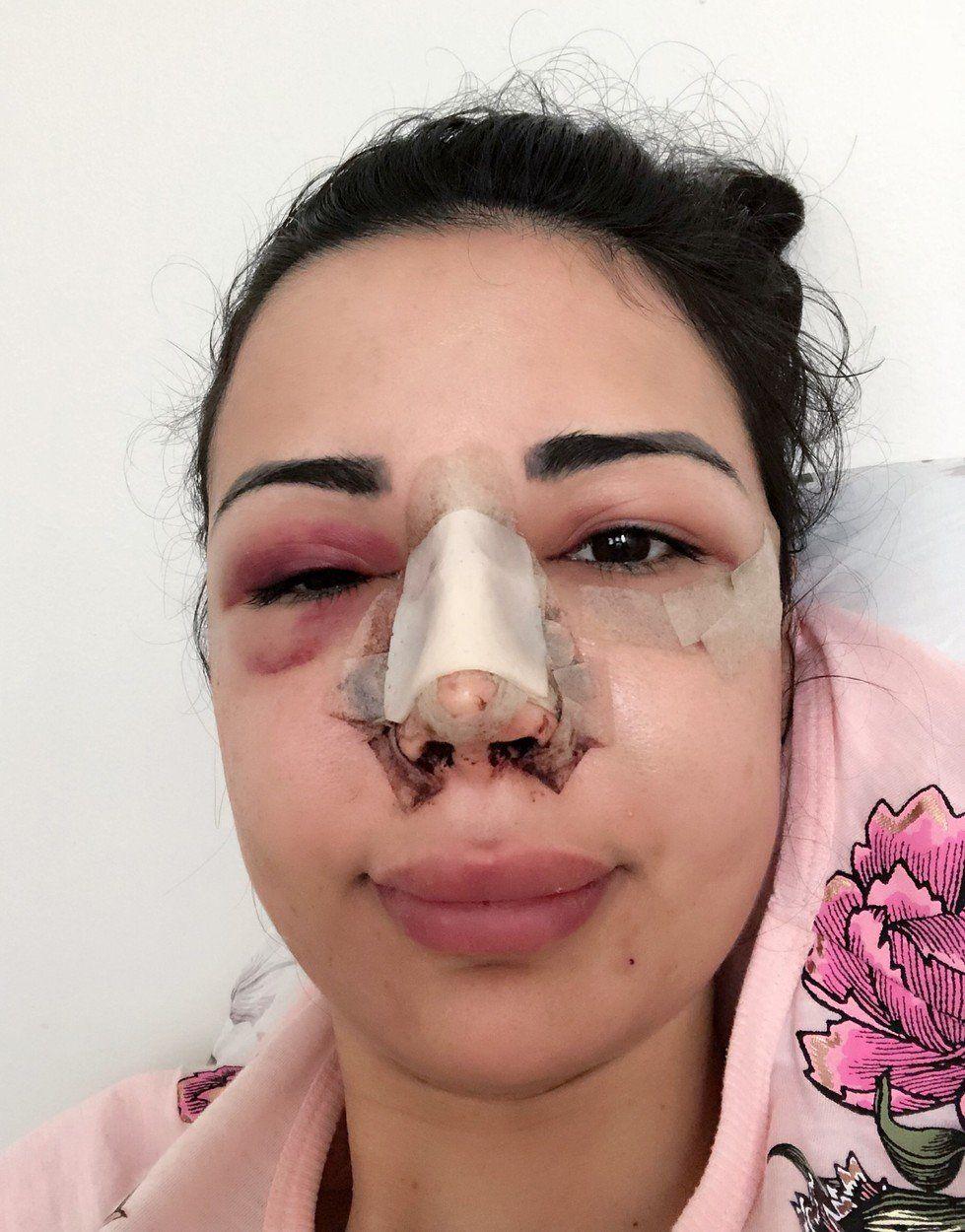 Kim kardashian hasonmás műtét nő brazil