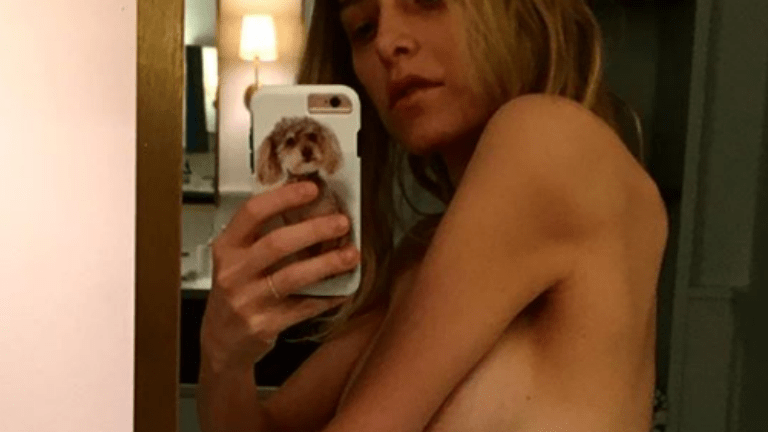 pajzsmirigy probléma anorexia basedow-kór