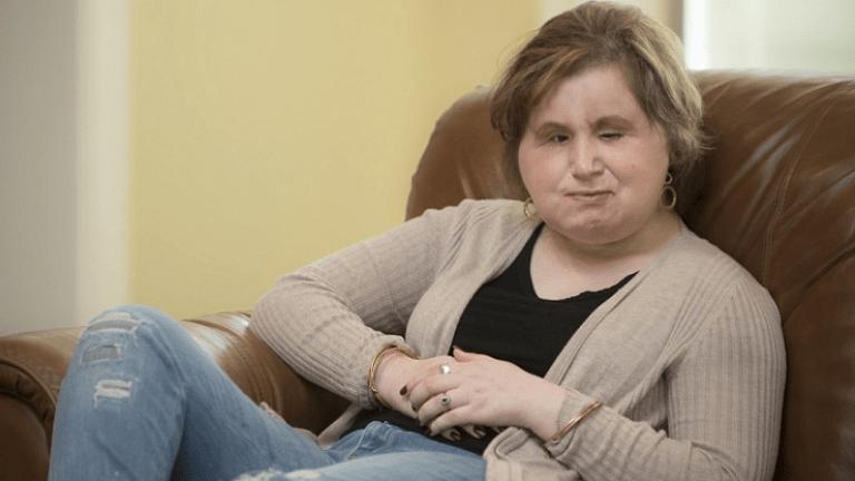 katie arcátültetés donor rekord
