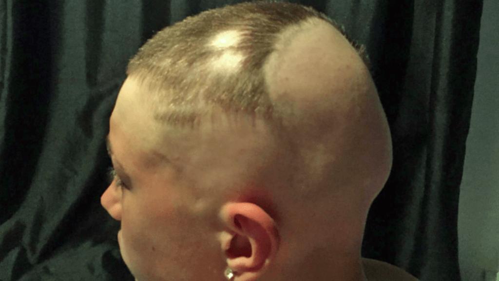 hajhullás alopécia önbizalom