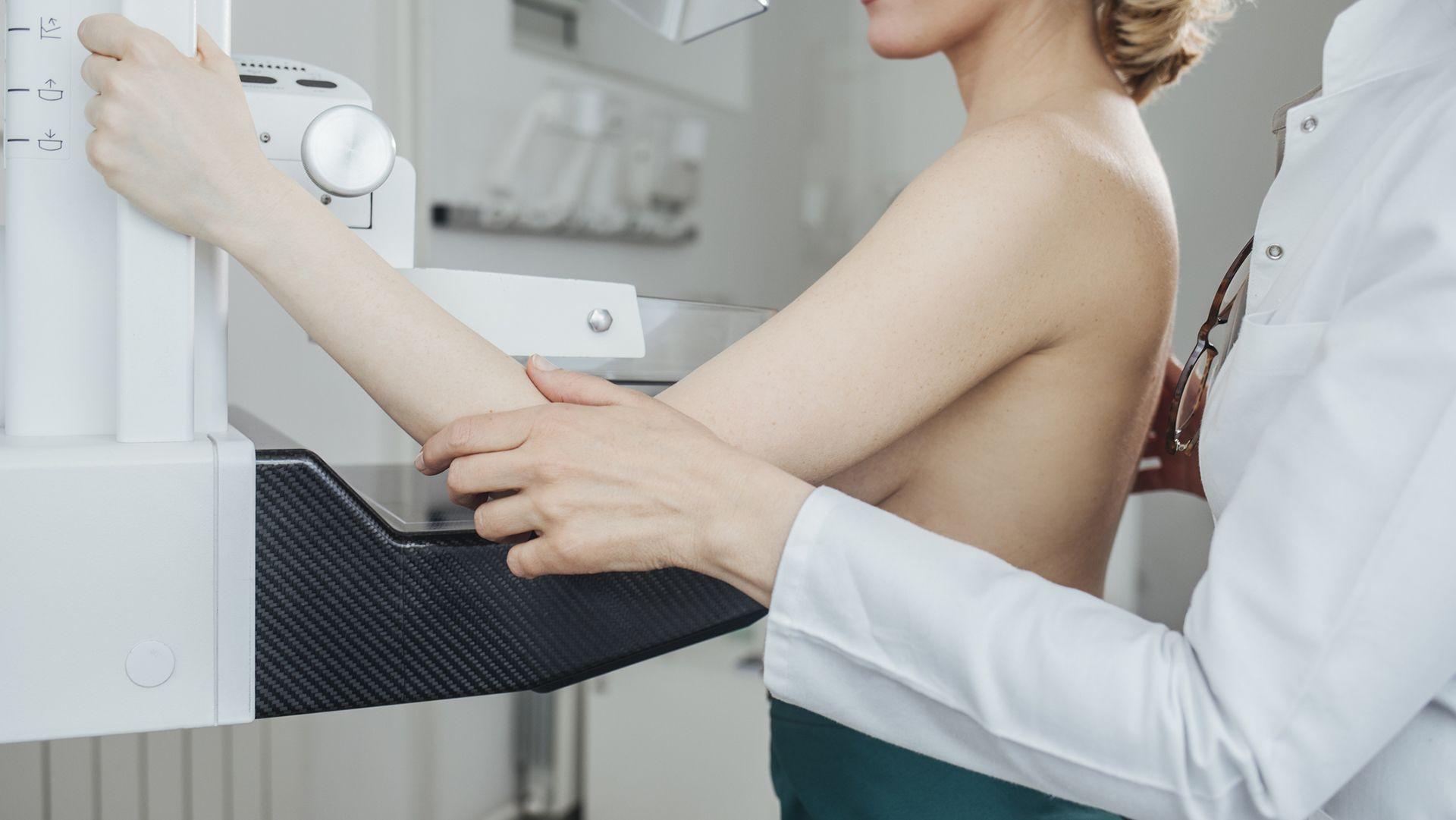 mell rák mammográfia