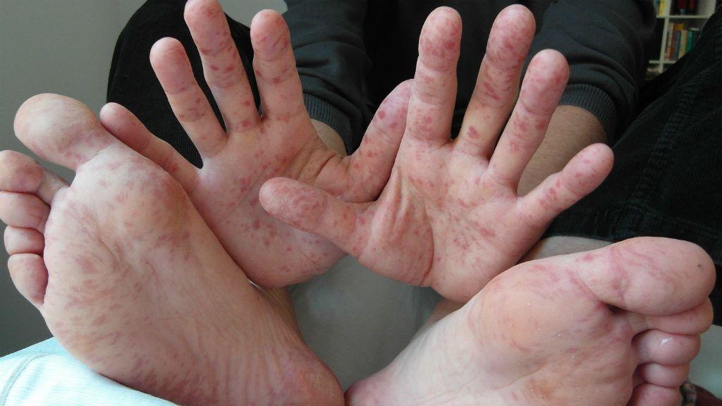 Fekélykezelés, sebkezelés - diabéteszes láb - Cukorbetegközpont