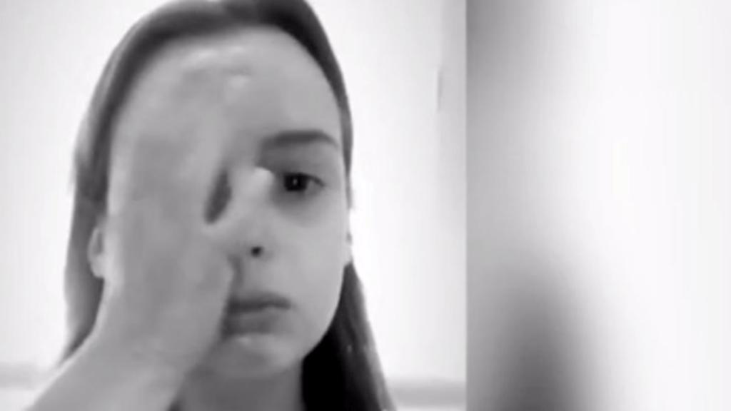 epilepszia roham videó