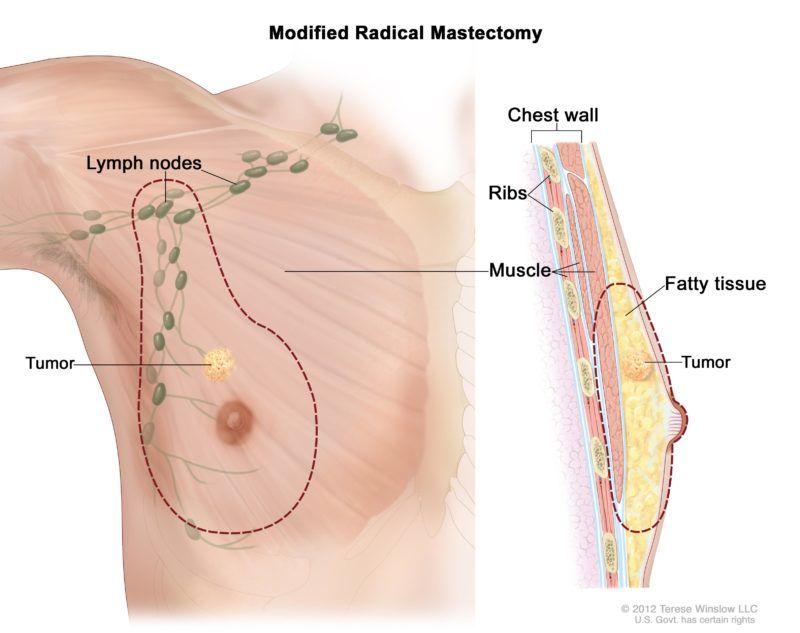 A mellrák a férfiak életét is veszélyezteti | Well&fit