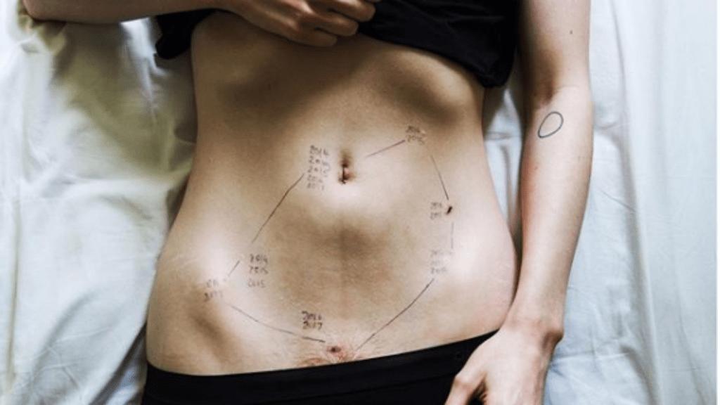 endometriózis kampány figyelemfelhívás