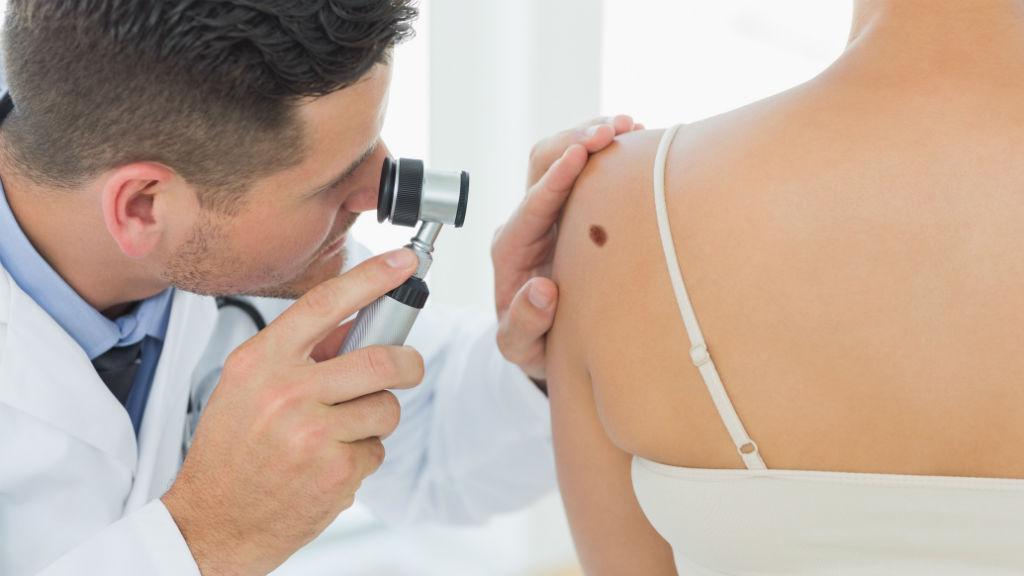 bőrrák, anyajegyvizsgálat