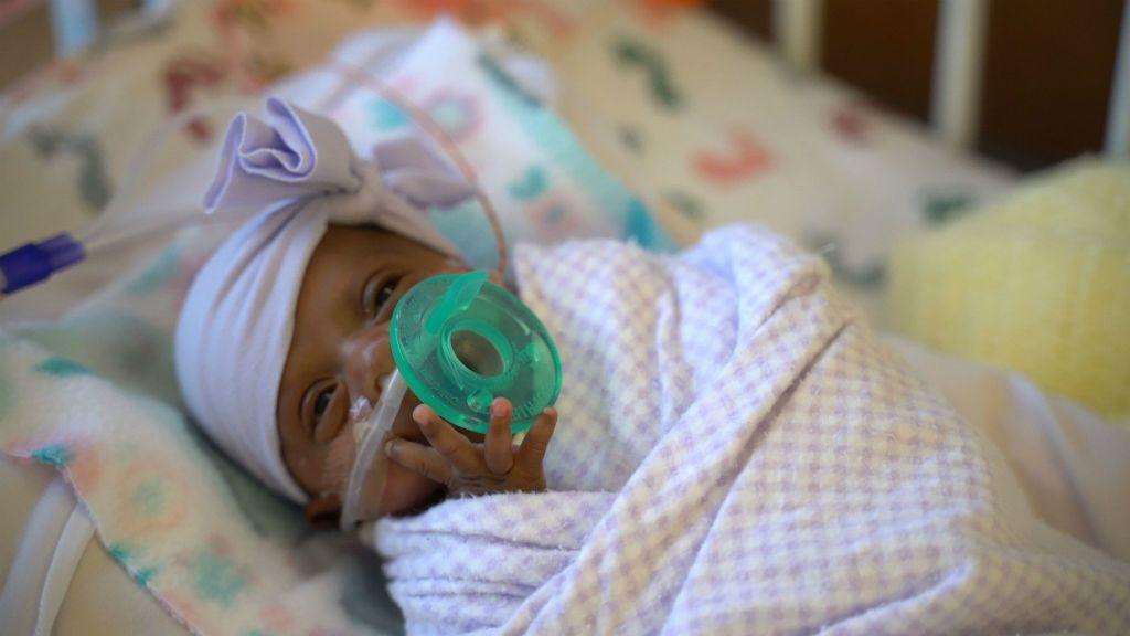 Saybie a világ legkisebb túlélő koraszülöttje
