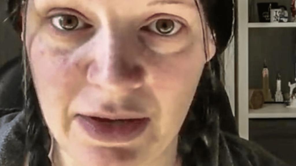 terhességi hányás rosszullét Facebook videó